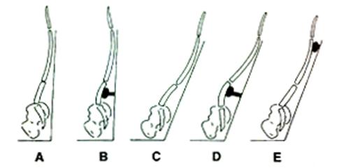 imagen para la web de osteopatía y Pilates y control motor y reeducación postural en Alcalá de Henares de Rodrigo Guadián