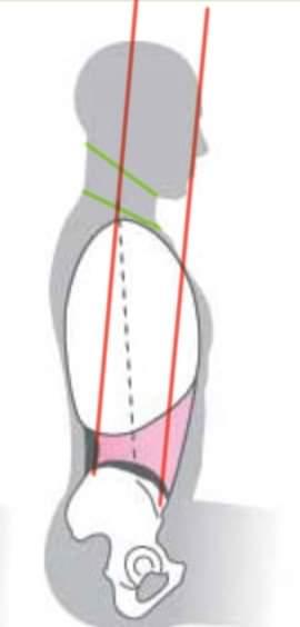 Alineación  cervical