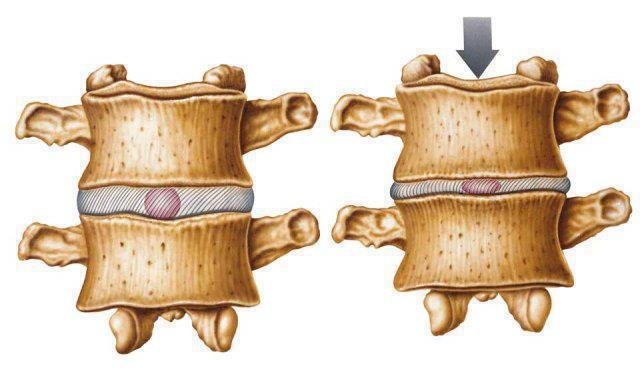 hernias y profusiones
