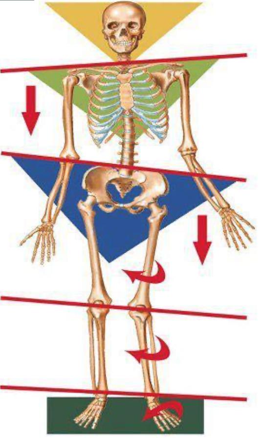 Desalineaciones-cadera-pronación- pie
